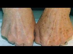 Cómo eliminar las manchas de las manos