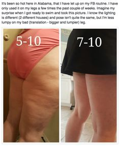 Distorted fascia is what causes the look of dimples and lumps that p… Distorted fascia causes the appearance of … Cellulite Wrap, Cellulite Scrub, Skin So Soft, Smooth Skin, Fascia Blasting, Lymph Massage, Ashley Black, Acne Breakout, Exercises