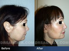 Before and after photo of 55 year old female patient who had revision rhinoplasty.