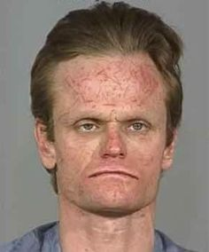 The source of the scratches on Chris Kemp's ample forehead are unknown — the 37-year-old Oregon man was arrested for burglary after he was caught playing dress-up with women's clothes in a stranger's house.