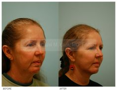 Reshaping (Otoplasty) - Ear Reshaping By Dr Samuel. Plastic Surgery Photos, Skin Resurfacing, Facial Rejuvenation, Chemical Peel, Photo Galleries, Ears, Cosmetics, Ear