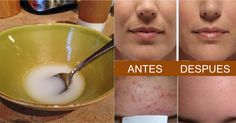 Después de lavarse la cara con el siguiente remedio, habrá reducido las arrugas, la piel flácida y el acné. El aceite de coco y el bicarbonato de sodio tienen numerosos beneficios y pueden transformar la piel.