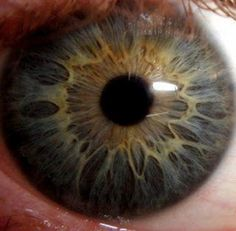 Dark blue iris with some yellow brown near the pupil.