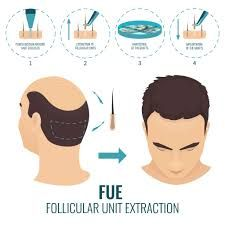 Hair Growth Center is the best hair restoration and hair transplant clinics in London, UK. Our expert team performs FUT and FUE hair transplant procedures!