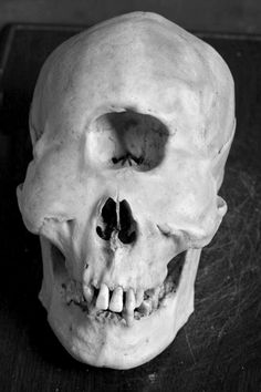 Just another skull of a cyclops