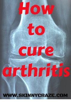 How to cure arthritis – Skinny Craze