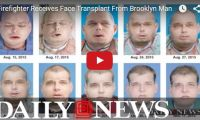 Firefighter Receives Face Transplant From Deceased Brooklyn Man Freaky yet fascinating! One man's tragedy is another man's chance at a normal life… hopefully. This Mississippi firefighter, Patrick Hardison has endured 71 operations over 12 years after a fire-related incident damaged his face...