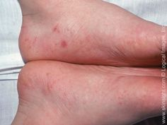 Dyshidrotic eczema is a condition in which small blisters develop on the hands and feet. Blisters are often itchy.