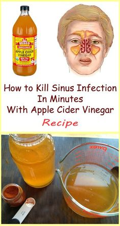 You can try and treat the symptoms of sinus infections with lots of different medicines, but there's no guarantee that you'll succeed. However, if you decide to use apple cider vinegar, you will ease the ache in a safe and effective way. Daily Health Tips, Health And Fitness Tips, Health Advice, Health Diet, Health Care, Oral Health, Home Remedies For Sinus, Natural Remedies, Health Remedies