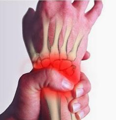 How about reading some of the best tips available today regarding arthritis? There is nothing positive about having arthritis, and finding out the best way to treat it is essential to your health. Natural Home Remedies, Herbal Remedies, Health Remedies, Arthritis Remedies, Arthritis Diet, Rheumatoid Arthritis, Health Tips, Health And Wellness, Health Fitness
