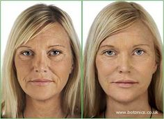 Dermal fillers is a natural treatment which beautifully restores youthful volume to areas affected by age + gravity.