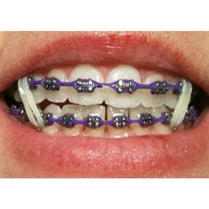 Purple Braces Power Chain Healthy, white teeth are a very important element in human aesthetics. Braces Rubber Bands, Braces Bands, Braces Tips, Dental Braces, Teeth Braces, Power Chain Braces, Braces Transformation, Gold Braces, Cute Braces Colors