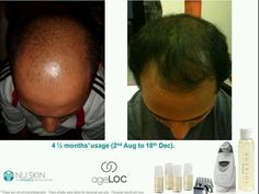 Got Hair?? Nutriol works with the Galvanic Spa    To also experience these mind blowing results go to www.nuskin.com click on your country register with ID:ZA1013405 as your sponsor ID.  e-mail me at danni-kr@hotmail,com for any assistance