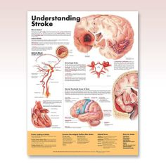 CARDIOLOGY - Understanding Stroke Anatomy Poster explains and illustrates stroke, including the two main types: ischemic and hemorrhagic. For ischemic stroke (blockage), it shows common sites of plaque formation, formation of a thrombus and embolus. Available in English and Spanish (Entendiendo el derrame).