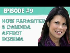 The Eczema Podcast #9: How Parasites and Candida Affect Your Eczema | Prime Physique Nutrition