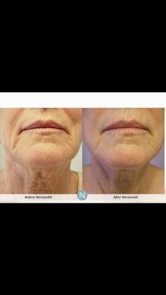 Nerium age-defying products are based on Real Science & create Real Results. We offer skin care that reduces the appearance of deep & fine lines and wrinkles.