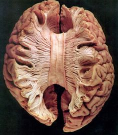 Corpus callosum- the large band of neural fibres connecting the two brain hemispheres and carrying messages between them