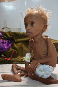 Salem, five, is one of the thousands of children affected by the conflict in Yemen. The five-year-old suffers from malnutrition and Unicef predicts that children could die by the end of 2017 We Are The World, People Of The World, Choose Life, Each Day, World History, Beautiful Children, Beauty Hacks, Beauty Tips, Death
