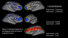 Neuroimaging shows that young starting age of marijuana causes arrested neurodevelopment.