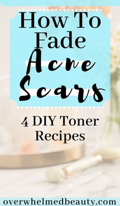 How to Fade Acne Scars. Homemade toners for dark spots and hyperpigmentation. All natural toner using lemon and apple cider vinegar to reduce the appearance of acne scars . hacks for teens girl should know acne eyeliner for hair makeup skincare Acne Scar Removal Treatment, Back Acne Treatment, Spot Treatment, Overnight Acne Treatment, Acne Treatments, Natural Cough Remedies, Cold Home Remedies, Sleep Remedies, Beauty