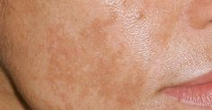 5 remedios caseros para eliminar esas manchas indeseadas de la piel #salud