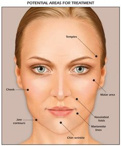 A dermal filler is a soft tissue filler that is injected into the skin to fill-in or plump a specific area. Dermal fillers can be synthetic material or derived from natural sources.
