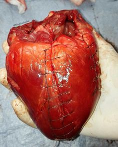 Wounds of the heart are attended with two important sources of danger, namely, excessive hemorrhage and interference with… Medical Students, Medical School, Homo, Medical Anatomy, Med Student, School Motivation, Med School, Make A Person, Anatomy And Physiology