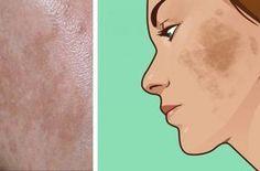 Εξαφάνισε τις πανάδες με ένα συστατικό που υπάρχει στην κουζίνα σου! Beauty Care, Beauty Hacks, Hair Beauty, Beauty Tips, Pimple Scars, How To Get Rid Of Pimples, Dark Spots, Facial, Aurora Sleeping Beauty
