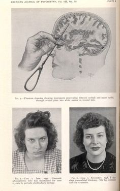 Lobotomy changes mentality and physical composure of person. We can see a difference.