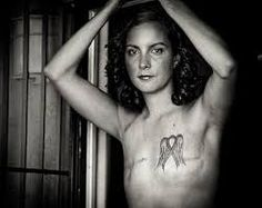 Image result for inspirational stories of models with scars