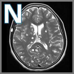 International Day of Radiology | Radiopaedia.org