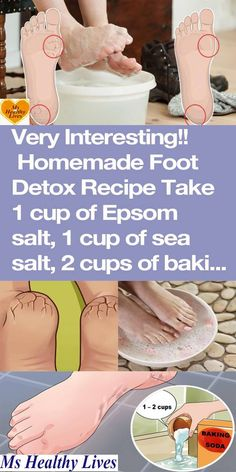 Soak Your Feet in This Powerful Baking Soda Mixture 2x Each Week To Heal Dry And Cracked Feet!
