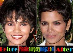 Nose Plastic Surgery, Plastic Surgery Photos, Celebrity Plastic Surgery, Halle Berry, Kylie Jenner Nose Job, Jennifer Aniston Nose Job, Ariana Grande Nose Job, Rhinoplasty Surgery, Cosmetic Procedures