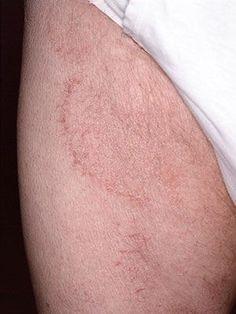 35 Best SKIN PROBLEMS images in 2017 | Skin problems, Eczema