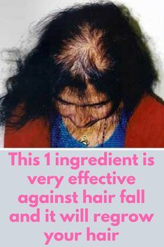This 1 ingredient is very effective against hair fall and it will regrow your hair When it comes to hair, one of the most effective ingredients which are frequently used in cosmetics is Castor oil. It's considered to be a natural remedy for hair issues li Hair Remedies For Growth, Hair Loss Remedies, Hair Growth Tips, Hair Thickening Remedies, Thinning Hair Remedies, Dandruff Remedy, Healthy Hair Growth, Baking Soda For Hair, Baking Soda Shampoo