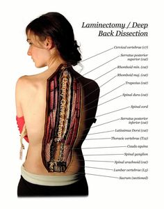 Laminectomy by dquirk1017 on Etsy