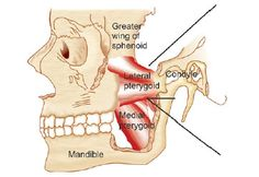 Pterygoid Muscle Transposition for Reconstruction of Small Posterior Defect Along with Primary Closure Following Surgery for Oral Cancers: A Novel Technique