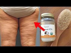 Some people may ask how they can stop cellulite from ever happening to them. Yet others will ask how to get rid of the cellulite they already have. Combattre La Cellulite, Coconut Oil Cellulite, Cellulite Exercises, Cellulite Remedies, Reduce Cellulite, Dry Brushing Cellulite, Fitness Workouts, Workout Exercises, Lose Weight