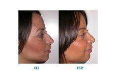 Naso rifatto con naturalezza, ecco uno degli interventi della Chirurgia Estetica Dalmazia