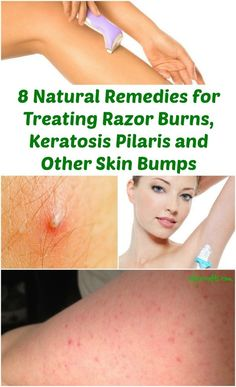 8 Natural Remedies for treating bumps. Lactate lotion looks interesting.