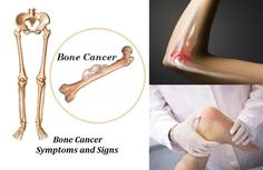 Bone Cancer, Signs and Symptoms !