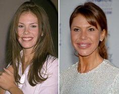 Nikki Cox Plastic Surgery - An End To A Career #nikkicox #celebrities #plasticsurgery #beforeafterphotos #hollywood #beauty #makeup #entertainment #popular