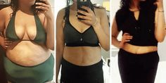 Woman loses more than 100 pounds in a year with surgery - INSIDER