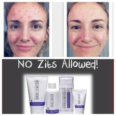 Combat acne and post-acne marks with our clinically proven Rodan + Fields UNBLEMISH acne blemish treatment regimen. Learn more about UNBLEMISH. Acne Blemishes, Acne Scars, Love Your Skin, Good Skin, Unblemish Rodan And Fields, Makeover Before And After, Keep Calm And Love, Anti Aging Skin Care, 6 Years