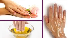 3 treatments for battered and aged hands Beauty Skin, Health And Beauty, Hair Beauty, Natural Health Tips, Beauty Cream, Hand Care, Dry Hands, Beauty Recipe, Natural Cosmetics