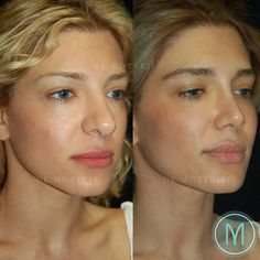 Gary motykie md facs sur rhinoplasty + facial fat grafting this 31 year old patient underwent a revision rhinoplasty utilizing a closed scarless technique snowflakes on nose eyelashes stencil by winter hristmas holiday decor favorite things Nose Plastic Surgery, Korean Plastic Surgery, Nose Surgery, Pretty Nose, Nose Reshaping, Rhinoplasty Before And After, Rhinoplasty Surgery, Nose Shapes, Operation