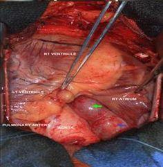 simple limbal epithelial transplantation pdf