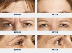 The cosmetic form of botulinum toxin is a popular injectable that temporarily reduces or eliminates facial fine lines and wrinkles. The most commonly treated areas are frown lines, forehead creases and crow's feet near the eyes. Botulinum Toxin, Cosmetic Procedures, Crows Feet, Facial, Cosmetics, Type, Facial Treatment, Facial Care, Face Care