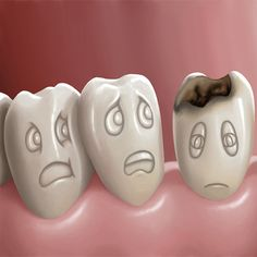 Is tooth decay and cavities the same thing? Tooth decay is not the same as a cavity — but tooth decay can lead to the formation of a cavity. Tooth decay (also known as dental caries) originates with plaque, the sticky, bacteria-laden film that collects on your teeth between brushing.
