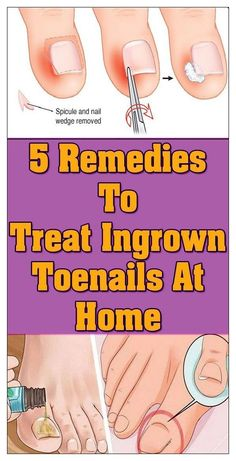 Health And Fitness Articles, Health Tips For Women, Health Fitness, Skin Care Remedies, Health Remedies, Home Remedies, Wellness Tips, Health And Wellness, Health Care